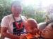 Kondisi Wahyu Balita Penderita Tumor Mata Asal Mentawai Mulai Membaik